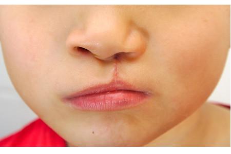 L'intervento per il labbro leporino