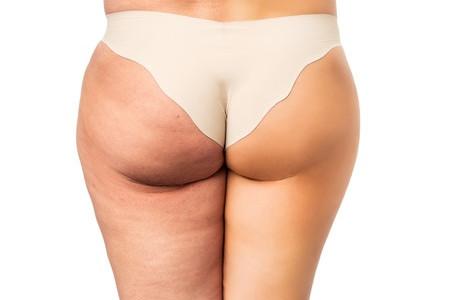 Come eliminare la pelle a buccia d'arancia? 3 trattamenti indispensabili